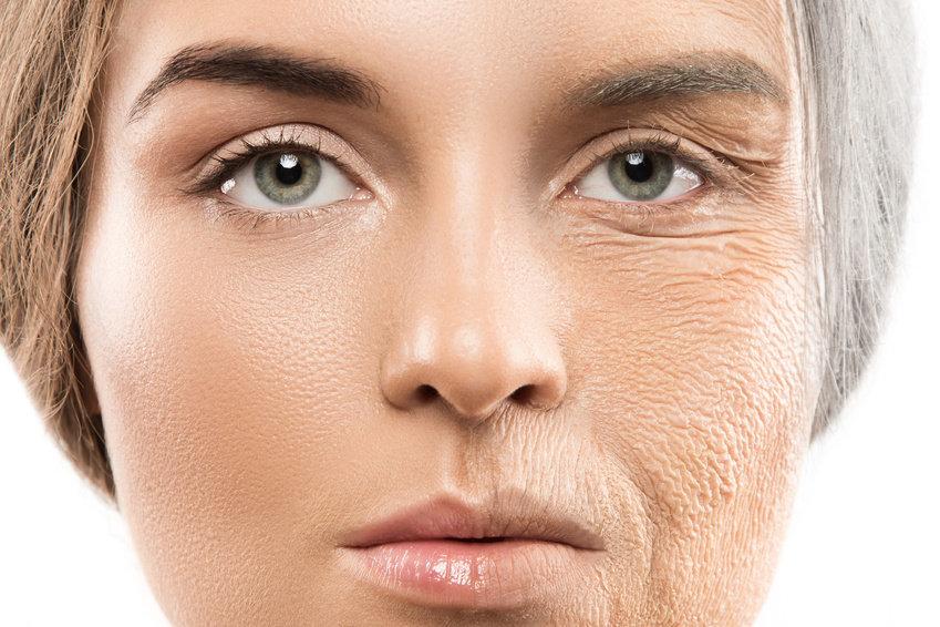 ... ảnh hưởng đến chức năng của tế bào biểu bì, từ đó đẩy nhanh quá trình  lão hóa da, xuất hiện các nếp nhăn và làn da xỉn màu.